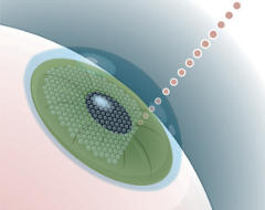 The IntraLase laser creates the corneal flap so that the laser in the next step can perform the microscopic proceedure to correct your vision.
