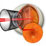 Laser photocoagulation for treatment of eye infections