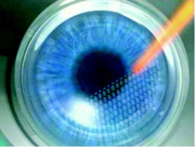 The IntraLase creates a corneal flap of uniform thickness