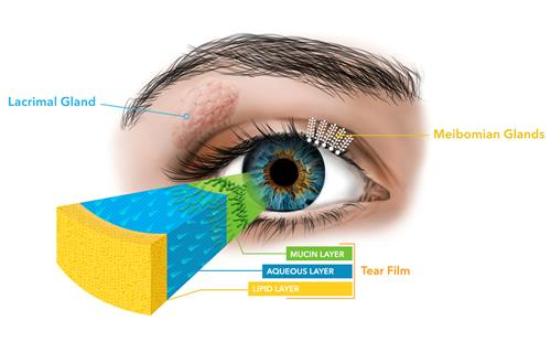 Understanding MGD, the leading cause of dry eye